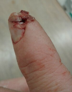 Vetbond surgical glue used to reattach fingertip